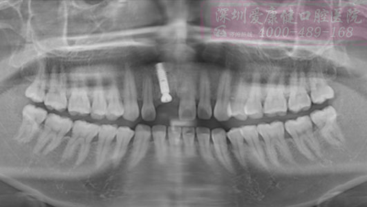 左上前牙桩核冠修复后根折-拔除即刻种植