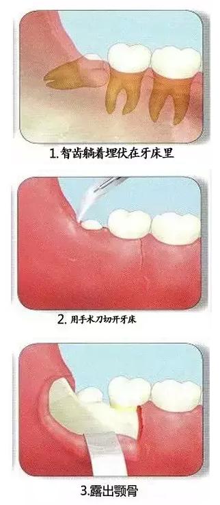 智齿的拔除过程有哪些