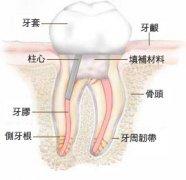 儿童龋齿与根管治疗