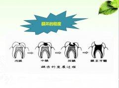 大人帮助小孩预防龋齿的诀窍
