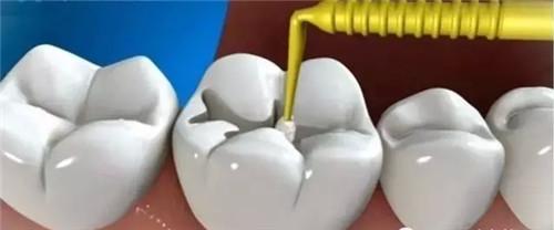 复合树脂补牙材料