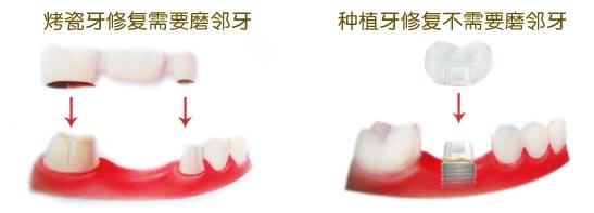 做烤瓷牙和做种植牙的区别