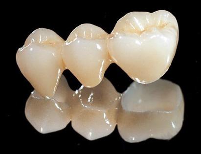 深圳做烤瓷牙修复牙齿好吗