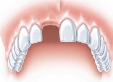 种植牙修复单颗牙齿缺失有哪些好处