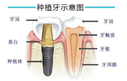 为什么缺失牙修复都选种植牙?