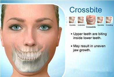 错颌畸形类型与面部美学的关系