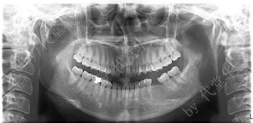 代堂华 即刻种植牙案例