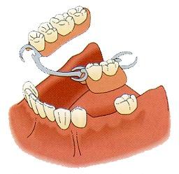 假牙多久换一次好?