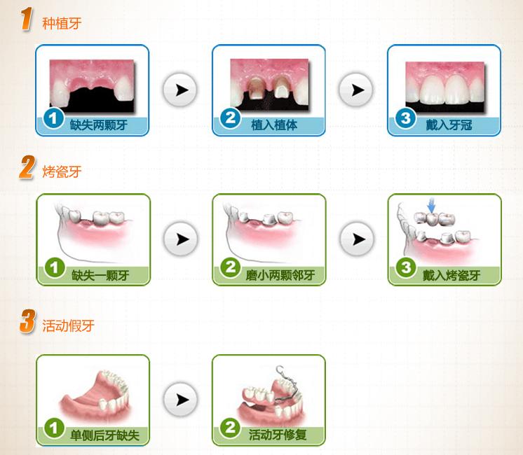 装假牙能用医保吗?