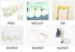 深圳烤瓷牙一颗多少钱?