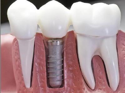 比较好的种植牙是什么?种植牙比较好的品牌?