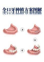 全口种植牙要打几颗钉?