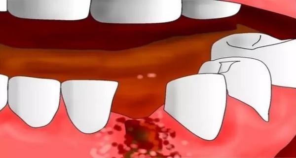 什么是干槽症?干槽症怎么治疗?
