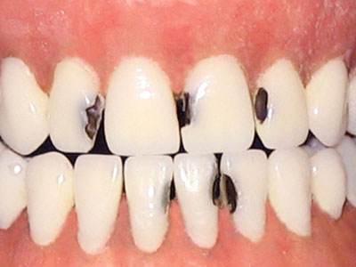 补一个牙缝大概多少钱