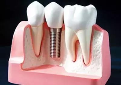 即刻种植牙的缺点