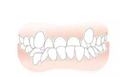 牙齿不齐的危害