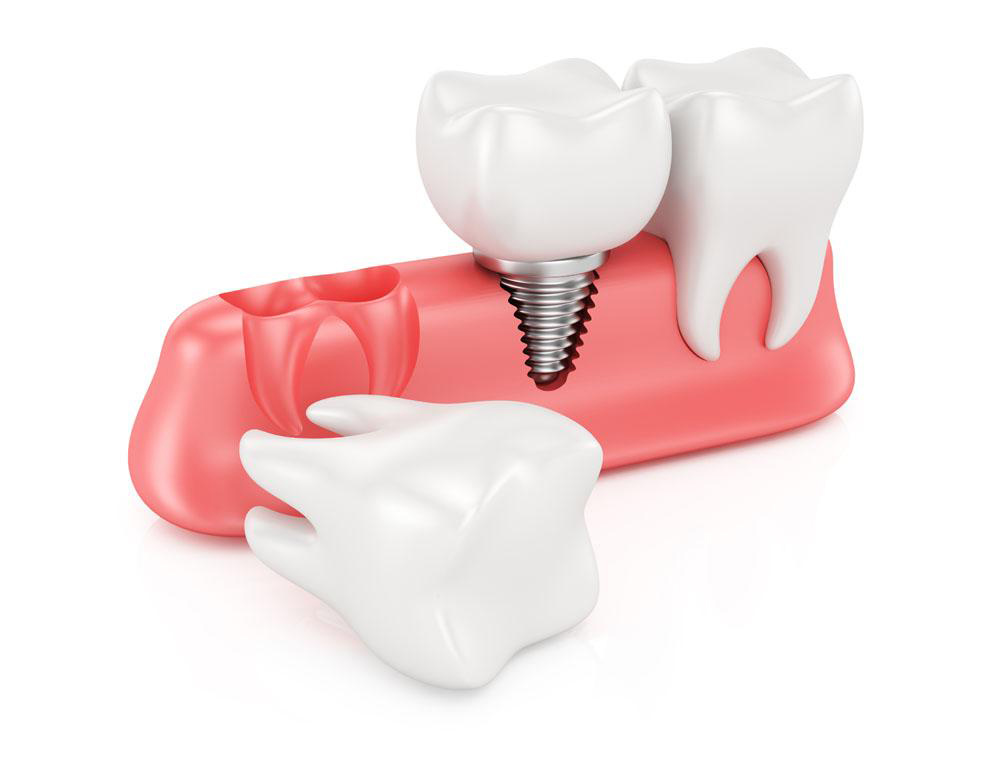 什么是种植牙
