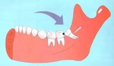 哪些智齿需要拔