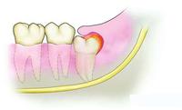 智齿冠周炎怎么办