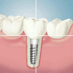牙齿缺失怎么办