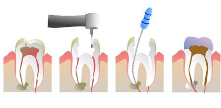 牙髓炎治疗方法