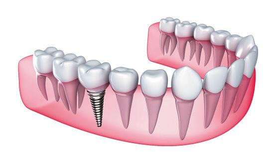 做种植牙有什么危害吗