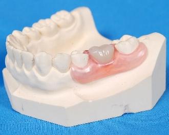 拔牙后多久能镶牙