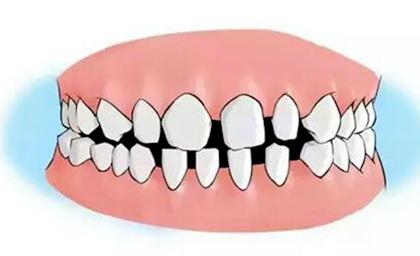 矫正关闭牙缝隙的时间