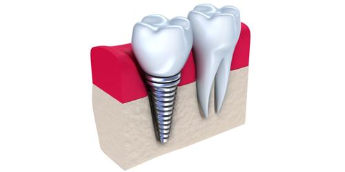 牙种植体有哪些好处