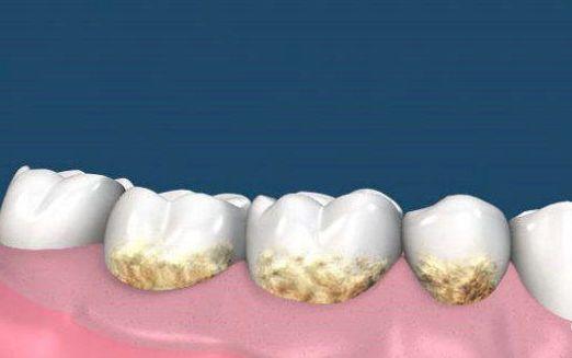 如何去除牙菌斑
