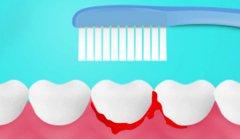致使牙龈出血的原因有什么?