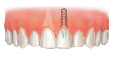 种植牙后有哪些护理要点