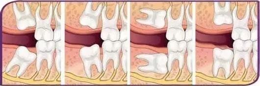 智齿生长状态