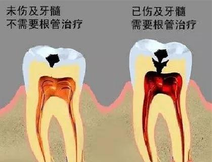 治疗牙髓炎比较好的方法是什么