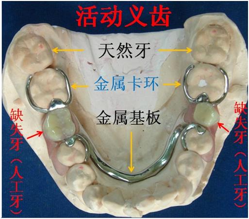 v种类种类具体有哪些义齿?什么是备课中心问题图片