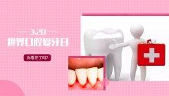 3.20世界口腔健康日,你看牙了吗?