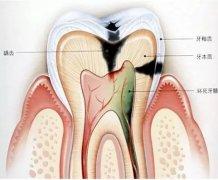 牙疼是怎么一回事?