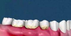 牙髓炎会不会自行好转?