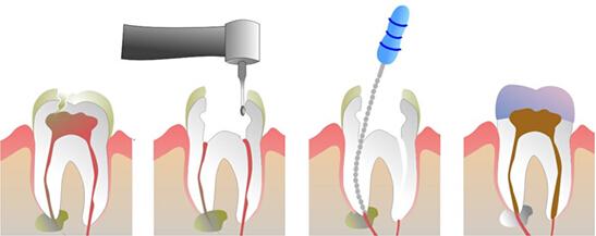 蛀牙根管治疗步骤