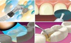 牙齿盖髓治疗有哪些方法,价格贵不贵?