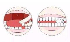 小孩牙齿再植是怎么做的,能用多久,收费多少?