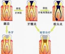 牙根尖切除术怎么做的,痛苦吗,价格是怎么算的?