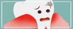 牙龈切除术风险大吗,术后的注意事项有哪些