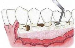 牙周翻瓣术为什么要补骨粉,骨粉容易漏吗,贵不贵?