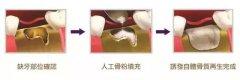 种植牙填骨粉会漏出来吗,多久后能成骨,怎么收费?
