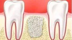 种植牙做上颌窦提升术需要植骨吗,疼不疼,费用多少?