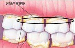 种植牙为什么需要做牙龈移植手术,疼不疼,价格贵吗?
