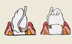 龈下刮治和牙龈切除手术哪种比较好?
