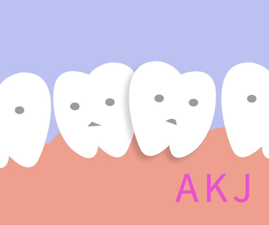 牙齿拥挤不齐