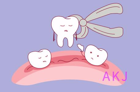 拔牙会不会得干槽症